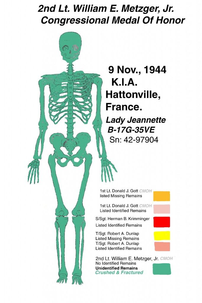 Metzger Skeleton